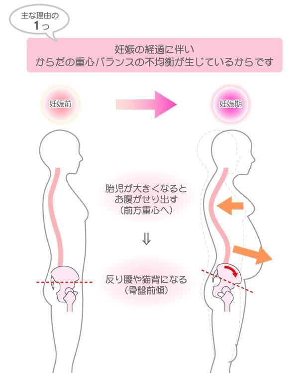 産後の骨盤前傾